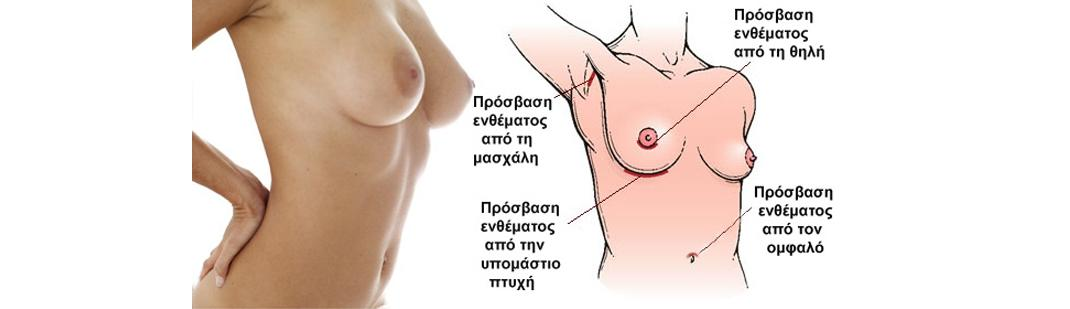 prosvash enthematos breast